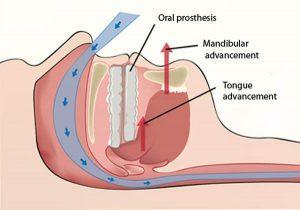 орални протези при лечение на сънна апнея - алтернативни методи