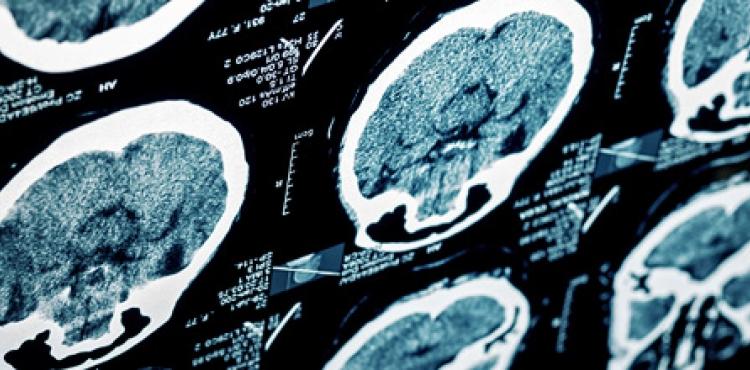 Неврология медицински център Inspiro
