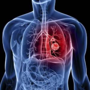 гръдна хирургия - специалности в медицински център INSPIRO