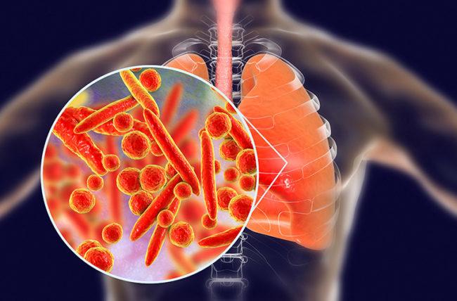 Лечение и диагностика на пневмония