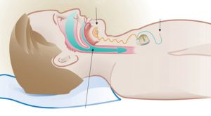 стимулиране на подезичния нерв при сличаи на сънна апнея