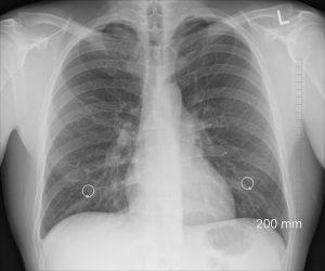 Пневмония лечение диагностика и симптими бял дроб снимка