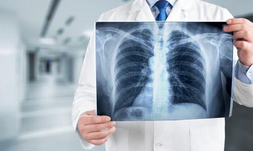 Симптоми на туберкулоза
