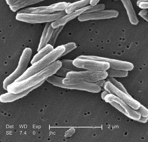 Начини на заразяване с туберкулоза - снимка на бактерии.